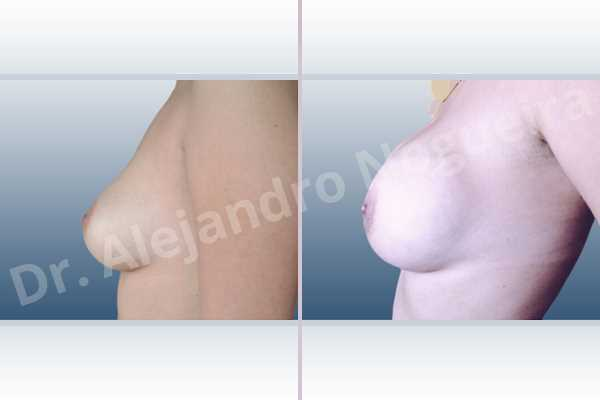 Cross eyed breasts,Empty breasts,Mildly saggy droopy breasts,Slightly large breasts,Extra large size,Lower hemi periareolar incision,Round shape,Subfascial pocket plane - photo 2