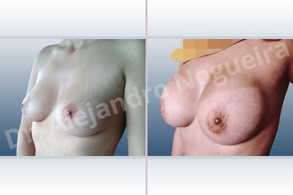 Cross eyed breasts,Empty breasts,Mildly saggy droopy breasts,Slightly large breasts,Extra large size,Lower hemi periareolar incision,Round shape,Subfascial pocket plane - photo 3