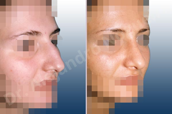 Before & After Case RQN7HFE4