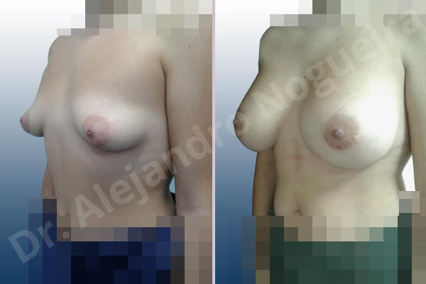Before & After Case RXBAD4KD