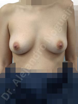 Asymmetric breasts,Narrow breasts,Slightly saggy droopy breasts,Small breasts,Empty breasts,Anatomical shape,Lower hemi periareolar incision,Subfascial pocket plane
