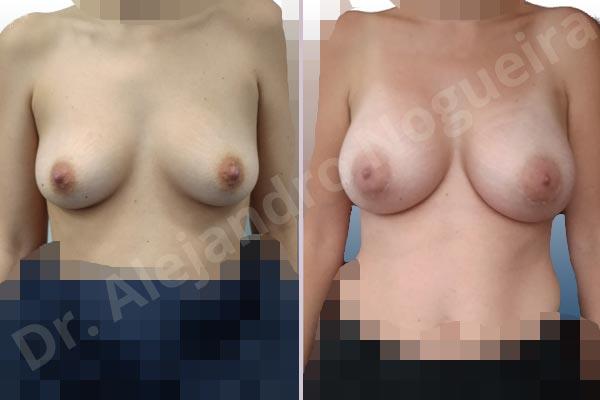 Asymmetric breasts,Narrow breasts,Slightly saggy droopy breasts,Small breasts,Empty breasts,Anatomical shape,Lower hemi periareolar incision,Subfascial pocket plane - photo 1