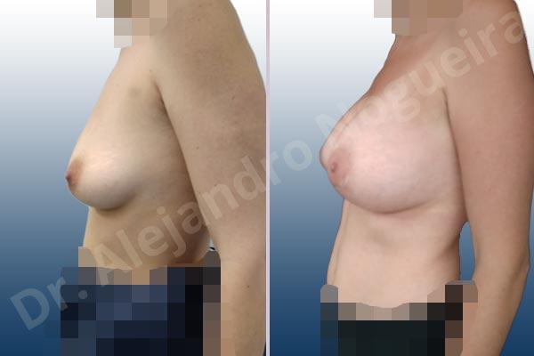 Asymmetric breasts,Narrow breasts,Slightly saggy droopy breasts,Small breasts,Empty breasts,Anatomical shape,Lower hemi periareolar incision,Subfascial pocket plane - photo 2