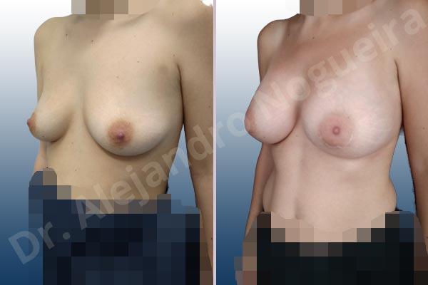 Asymmetric breasts,Narrow breasts,Slightly saggy droopy breasts,Small breasts,Empty breasts,Anatomical shape,Lower hemi periareolar incision,Subfascial pocket plane - photo 3