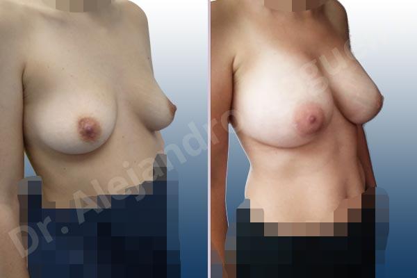 Asymmetric breasts,Narrow breasts,Slightly saggy droopy breasts,Small breasts,Empty breasts,Anatomical shape,Lower hemi periareolar incision,Subfascial pocket plane - photo 5