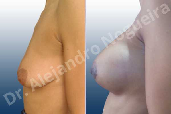 Asymmetric breasts,Empty breasts,Lateral breasts,Mildly saggy droopy breasts,Moderately saggy droopy breasts,Pendulous breasts,Small breasts,Tuberous breasts,Anatomical shape,Lower hemi periareolar incision,Subfascial pocket plane,Tuberous mammoplasty - photo 2