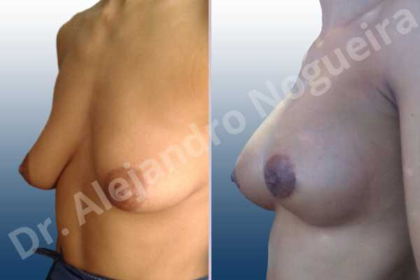 Asymmetric breasts,Empty breasts,Lateral breasts,Mildly saggy droopy breasts,Moderately saggy droopy breasts,Pendulous breasts,Small breasts,Tuberous breasts,Anatomical shape,Lower hemi periareolar incision,Subfascial pocket plane,Tuberous mammoplasty - photo 3