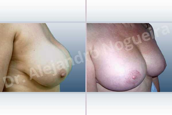 Asymmetric breasts,Breast implants capsular contracture,Breast implants capsule calcification,Breast implants displacement malposition,Breast implants excessive movement,Breast implants lateral slide,Breast implants side boob,Breast tissue bottoming out,Broken breast implants,Cross eyed breasts,Empty breasts,Extremely saggy droopy breasts,Failed breast lift,Lateral breasts,Moderately large breasts,Pendulous breasts,Severely large breasts,Severely saggy droopy breasts,Wide breasts,Anatomical shape,Anchor incision,Capsulectomy,Extra large size,Free nipple areola complex graft,Subfascial pocket plane - photo 4