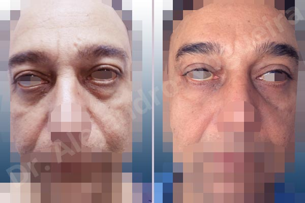 Baggy lower eyelids,Baggy upper eyelids,Deep nasolabial folds,Droopy cheeks,Droopy eyebrows,Droopy face,Droopy forehead,Saggy upper eyelids,Lower eyelid fat bags resection,Short temporal incisions supraperiosteal extended lift of the upper two thirds of the face,Transconjunctival approach incision,Upper eyelid fat bags resection,Upper eyelid skin and muscle resection - photo 1