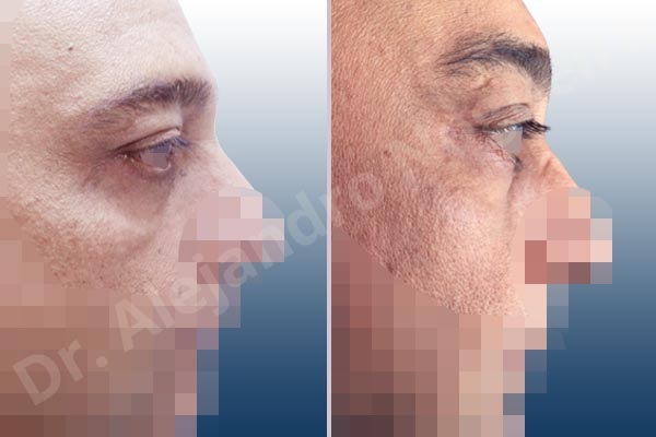 Baggy lower eyelids,Baggy upper eyelids,Deep nasolabial folds,Droopy cheeks,Droopy eyebrows,Droopy face,Droopy forehead,Saggy upper eyelids,Lower eyelid fat bags resection,Short temporal incisions supraperiosteal extended lift of the upper two thirds of the face,Transconjunctival approach incision,Upper eyelid fat bags resection,Upper eyelid skin and muscle resection - photo 4