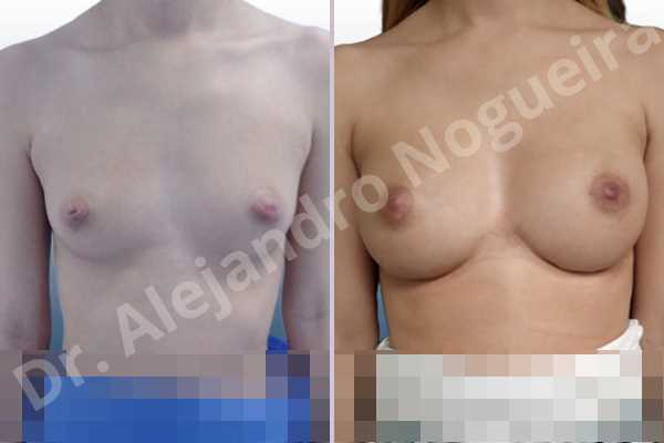Cleft nipples,Cross eyed breasts,Empty breasts,Inverted nipples,Small breasts,Too far apart wide cleavage breasts,Wide scars,Anatomical shape,Lower hemi periareolar incision,Subfascial pocket plane - photo 1