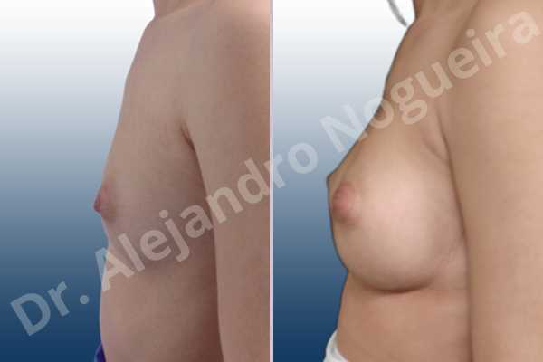 Cleft nipples,Cross eyed breasts,Empty breasts,Inverted nipples,Small breasts,Too far apart wide cleavage breasts,Wide scars,Anatomical shape,Lower hemi periareolar incision,Subfascial pocket plane - photo 2