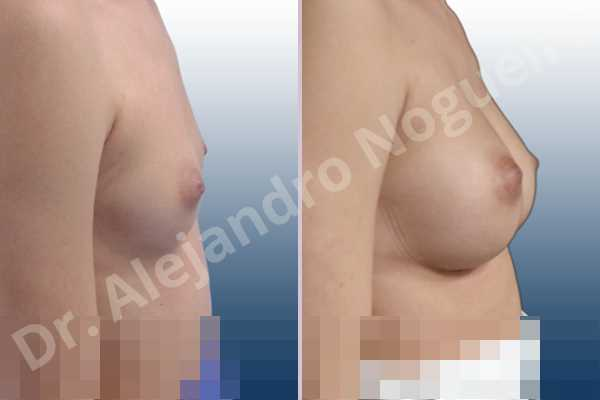 Cleft nipples,Cross eyed breasts,Empty breasts,Inverted nipples,Small breasts,Too far apart wide cleavage breasts,Wide scars,Anatomical shape,Lower hemi periareolar incision,Subfascial pocket plane - photo 4