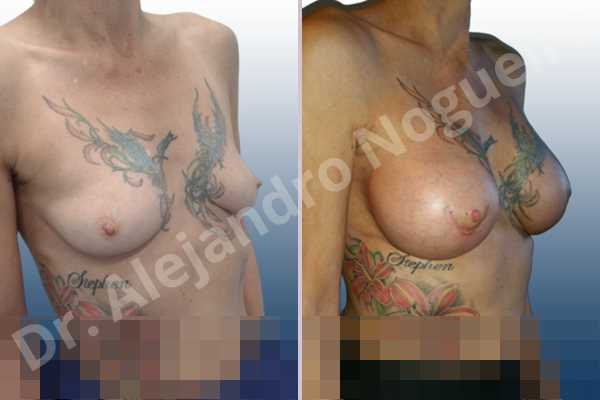 Asymmetric breasts,Empty breasts,Lateral breasts,Mildly saggy droopy breasts,Skinny breasts,Small breasts,Sunken chest,Too far apart wide cleavage breasts,Anatomical shape,Lower hemi periareolar incision,Subfascial pocket plane - photo 5