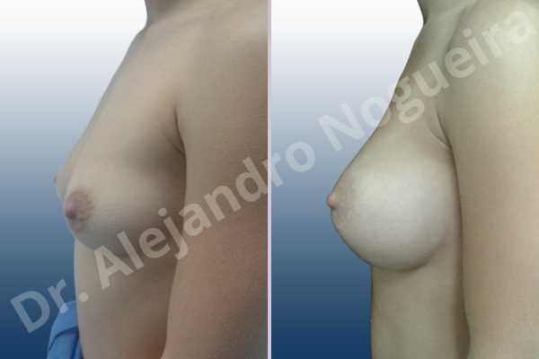Asymmetric breasts,Cross eyed breasts,Empty breasts,Lateral breasts,Slightly saggy droopy breasts,Small breasts,Sunken chest,Too far apart wide cleavage breasts,Anatomical shape,Lower hemi periareolar incision,Subfascial pocket plane - photo 2