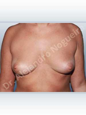 Empty breasts,Lateral breasts,Mildly saggy droopy breasts,Moderately saggy droopy breasts,Slightly large breasts,Tuberous breasts,Wide breasts,Lower hemi periareolar incision,Round shape,Subfascial pocket plane,Tuberous mammoplasty,Extra large size