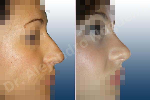 Broad dorsum,Broad nose,Crooked nose,Dorsum hump,Dorsum ridges,Droopy tip,Dynamic alar flaring,Large alar cartilages,Large nose,Long nose,Long upper lateral cartilages,Mediterranean nose,Overprojected tip,Plunging tip deformity,Closed approach incision,Dorsum hump resection,Lateral cruras cephalic resection,Lateral cruras shortening resection,Medial cruras shortening resection,Nasal bones osteotomies,Triangular cartilages caudal resection - photo 4