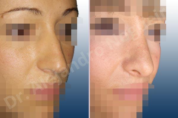 Before & After Case TLWLRIMG