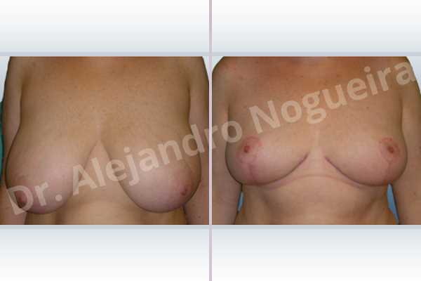 Cross eyed breasts,Extremely saggy droopy breasts,Lateral breasts,Pendulous breasts,Severely large breasts,Severely saggy droopy breasts,Tuberous breasts,Wide breasts,Anchor incision,Double vertical pedicle - photo 1