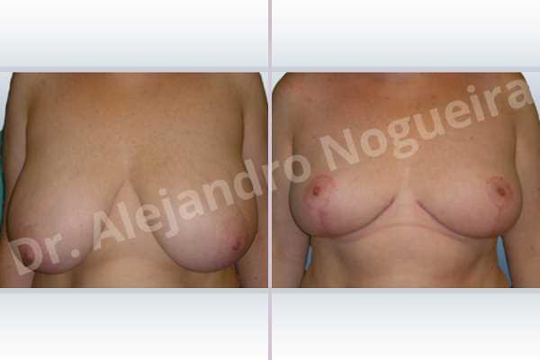 Before & After Case TU89HTWB