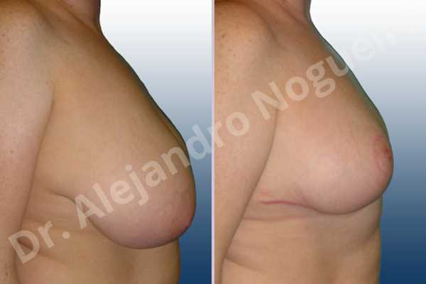 Cross eyed breasts,Extremely saggy droopy breasts,Lateral breasts,Pendulous breasts,Severely large breasts,Severely saggy droopy breasts,Tuberous breasts,Wide breasts,Anchor incision,Double vertical pedicle - photo 4