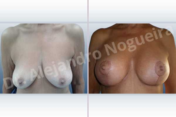 Empty breasts,Pendulous breasts,Severely saggy droopy breasts,Slightly large breasts,Wide breasts,Anatomical shape,Anchor incision,Subfascial pocket plane,Superior pedicle - photo 1