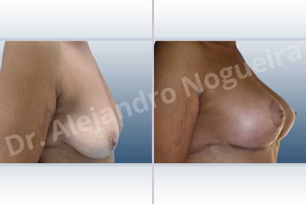 Empty breasts,Pendulous breasts,Severely saggy droopy breasts,Slightly large breasts,Wide breasts,Anatomical shape,Anchor incision,Subfascial pocket plane,Superior pedicle - photo 3