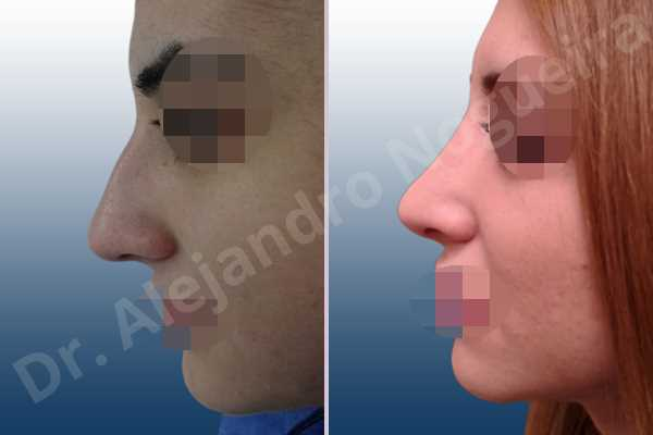 Before & After Case U2HDACI9
