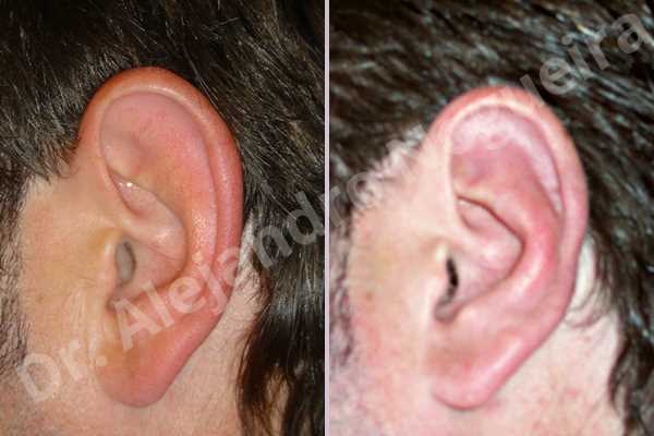 Prominent ears,Mustardé antihelical suturing - photo 1