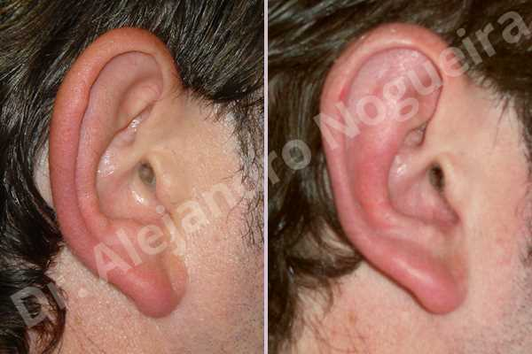 Prominent ears,Mustardé antihelical suturing - photo 3