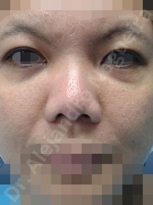 Alar flaring,Alar rim retraction,Asian eyelids epicanthus fold,Asian nose,Asian upper monolids,Baggy upper eyelids,Bulbous tip,Congenital nose,Flat dorsum,Humpless dorsum,Large nostrils,Large sills,Poorly defined tip,Saggy upper eyelids,Short nose,Short septum,Short upper lateral cartilages,Small alar cartilages,Small nose,Thick alar rim,Thick skin nose,Underprojected tip,Alar base resection alarplasty,Alar contour rim graft,Columella lengthening,Columella strut graft,Custom made tip graft,Ear cartilage graft harvesting,Extended columella strut graft,Extended shield tip columella graft,Incisional double eyelid crease,Intercrural columella plasty sutures,Lateral cruras batten graft,Lateral cruras caudal extension graft,Lateral cruras custom made graft,Lateral cruras lengthening graft,Lateral cruras replacement graft,Lateral cruras repositioning,Medial cruras replacement graft,Medial epicanthoplasty,Nostril sill resection,Onlay columella graft,Open approach incision,Septal cartilage graft harvesting,Septocolumella graft,Septum caudal extension graft,Septum replacement graft,Shield tip graft,Tip defatting,Tip replacement graft,Tongue in groove columella setback,Triangular cartilages caudal extension graft,Upper eyelid fat bags resection,Upper eyelid skin and muscle resection