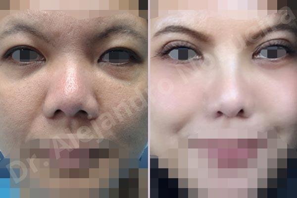 Before & After Case U9DQFVX9
