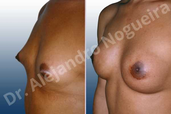 Small breasts,Too far apart wide cleavage breasts,Transgender breasts,Wide breasts,Lower hemi periareolar incision,Round shape,Subfascial pocket plane - photo 1