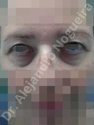 Baggy lower eyelids,Baggy upper eyelids,Saggy upper eyelids,Lower eyelid fat bags resection,Transconjunctival approach incision,Upper eyelid fat bags resection,Upper eyelid skin and muscle resection