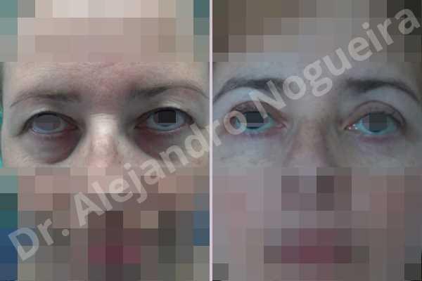 Before & After Case UE8DA6AQ