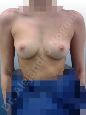 Empty breasts,Narrow breasts,Small breasts,Inframammary incision,Round shape,Subfascial pocket plane