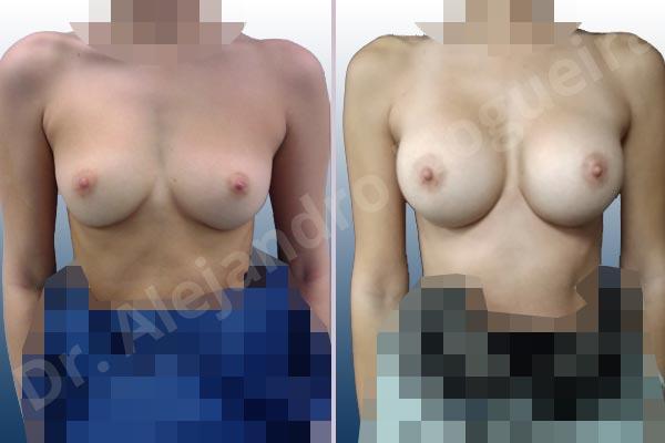 Empty breasts,Narrow breasts,Small breasts,Inframammary incision,Round shape,Subfascial pocket plane - photo 1