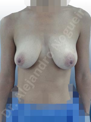 Cross eyed breasts,Empty breasts,Large areolas,Lateral breasts,Moderately saggy droopy breasts,Skinny breasts,Small breasts,Anatomical shape,Lollipop incision,Subfascial pocket plane,Superior pedicle