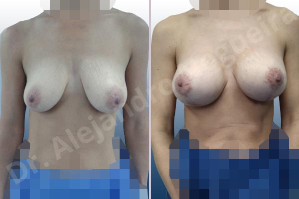 Cross eyed breasts,Empty breasts,Large areolas,Lateral breasts,Moderately saggy droopy breasts,Skinny breasts,Small breasts,Anatomical shape,Lollipop incision,Subfascial pocket plane,Superior pedicle - photo 1