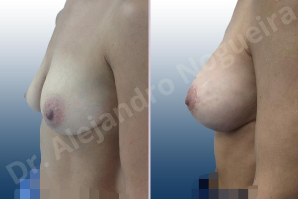 Cross eyed breasts,Empty breasts,Large areolas,Lateral breasts,Moderately saggy droopy breasts,Skinny breasts,Small breasts,Anatomical shape,Lollipop incision,Subfascial pocket plane,Superior pedicle - photo 2