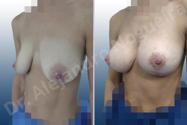 Cross eyed breasts,Empty breasts,Large areolas,Lateral breasts,Moderately saggy droopy breasts,Skinny breasts,Small breasts,Anatomical shape,Lollipop incision,Subfascial pocket plane,Superior pedicle - photo 3