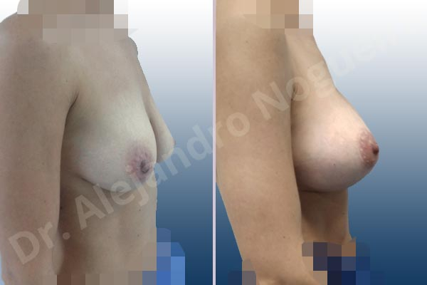 Cross eyed breasts,Empty breasts,Large areolas,Lateral breasts,Moderately saggy droopy breasts,Skinny breasts,Small breasts,Anatomical shape,Lollipop incision,Subfascial pocket plane,Superior pedicle - photo 4