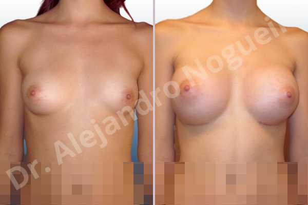 Asymmetric breasts,Empty breasts,Lateral breasts,Narrow breasts,Skinny breasts,Small breasts,Too far apart wide cleavage breasts,Inframammary incision,Round shape,Subfascial pocket plane - photo 1