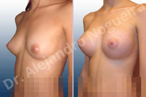 Asymmetric breasts,Empty breasts,Lateral breasts,Narrow breasts,Skinny breasts,Small breasts,Too far apart wide cleavage breasts,Inframammary incision,Round shape,Subfascial pocket plane - photo 3