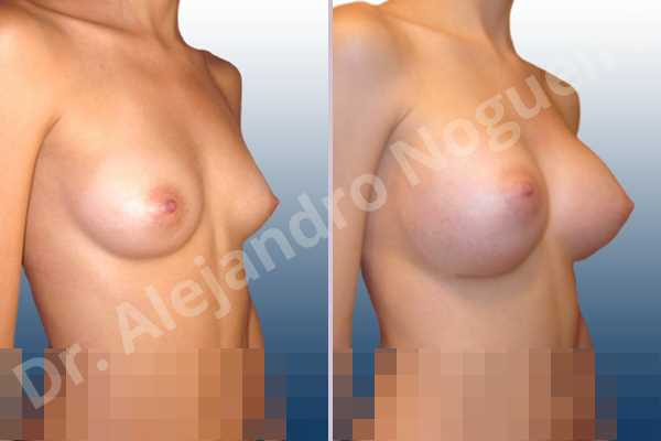 Asymmetric breasts,Empty breasts,Lateral breasts,Narrow breasts,Skinny breasts,Small breasts,Too far apart wide cleavage breasts,Inframammary incision,Round shape,Subfascial pocket plane - photo 5