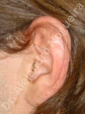 Prominent ears,Mustardé antihelical suturing