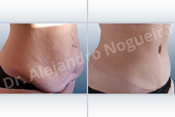 Saggy abdomen,Weak abdomen muscles,Standard abdominoplasty - photo 11