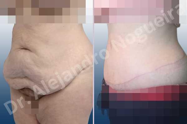 Saggy abdomen,Weak abdomen muscles,Standard abdominoplasty - photo 6