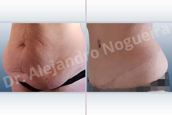 Saggy abdomen,Weak abdomen muscles,Standard abdominoplasty - photo 7