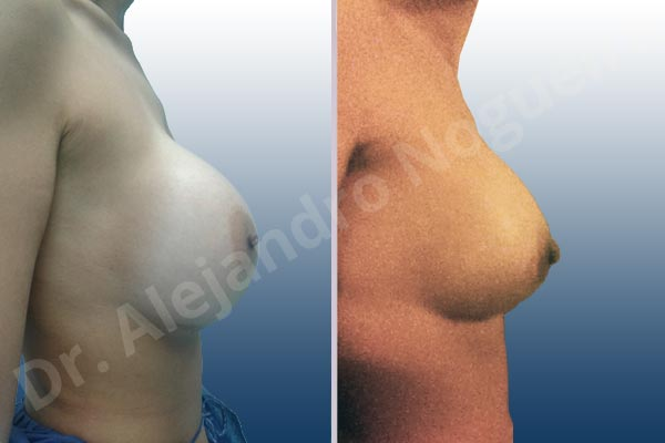 Before & After Case UZ6IXUTU